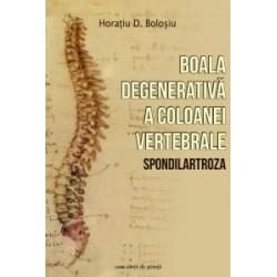 Boala degenerativa a coloanei vertebrale (Spondilartroza) - Horatiu D. Bolosiu